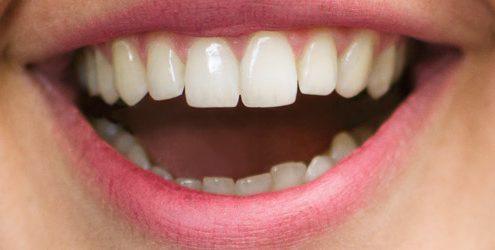 tannlege oslo smil